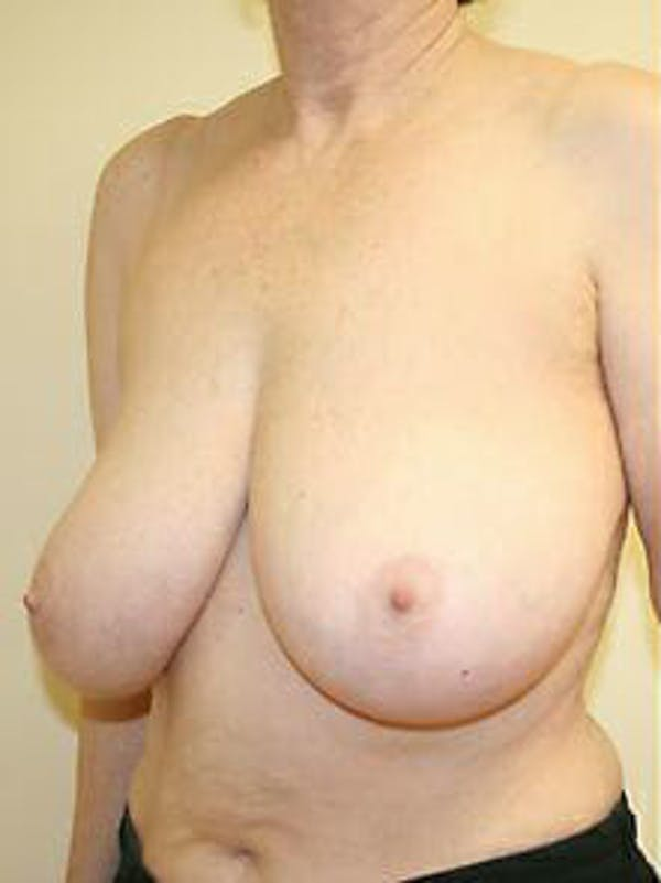 Breast Reduction Gallery - Patient 9605787 - Image 3