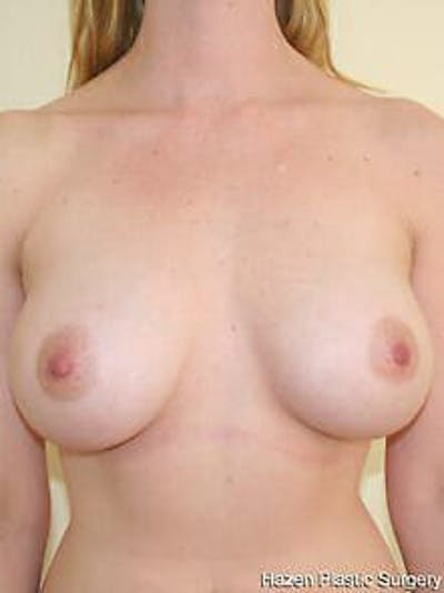 Breast Augmentation Gallery - Patient 9605788 - Image 2