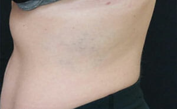 Tattoo Removal Gallery - Patient 9605786 - Image 2
