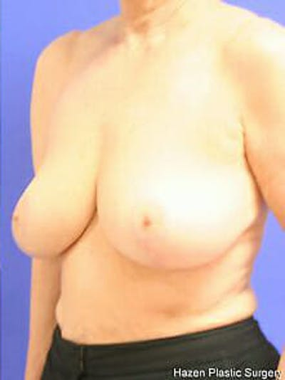 Breast Reduction Gallery - Patient 9605787 - Image 4