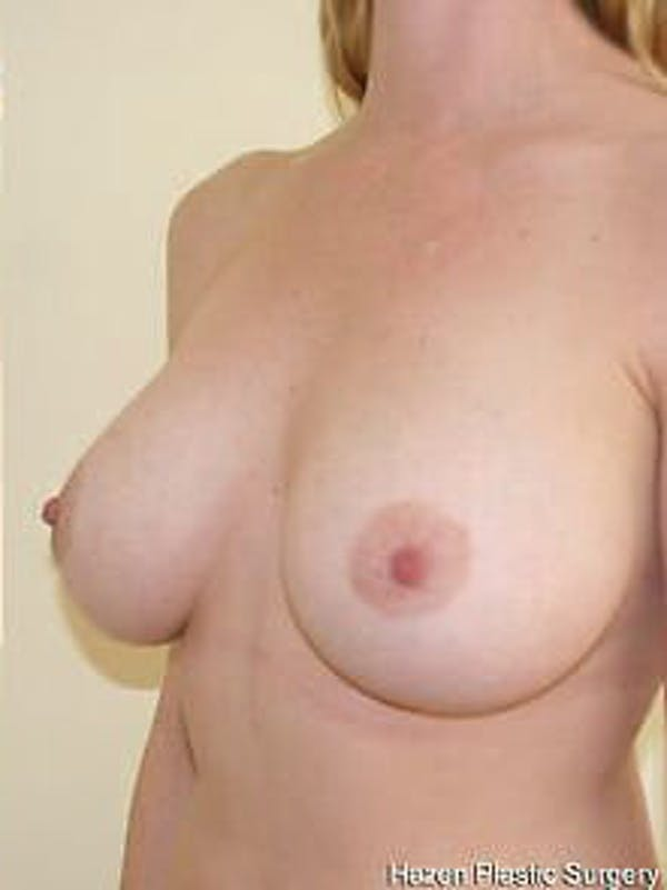 Breast Augmentation Gallery - Patient 9605788 - Image 4