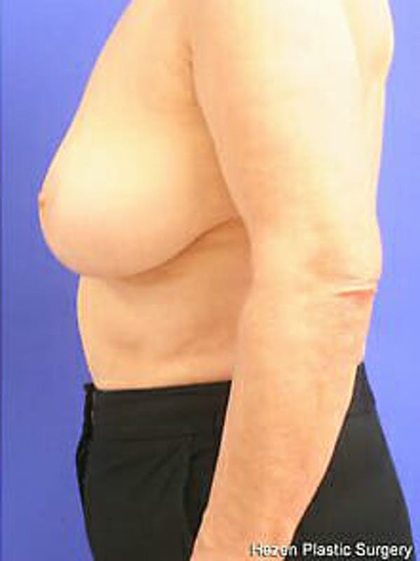 Breast Reduction Gallery - Patient 9605787 - Image 6