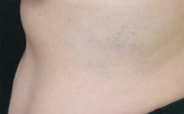 Tattoo Removal Gallery - Patient 9605786 - Image 4