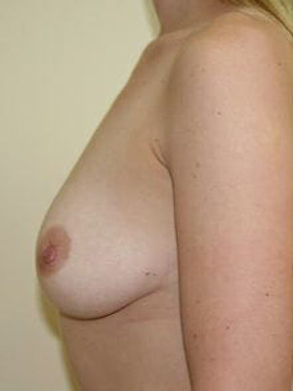 Breast Augmentation Gallery - Patient 9605788 - Image 5