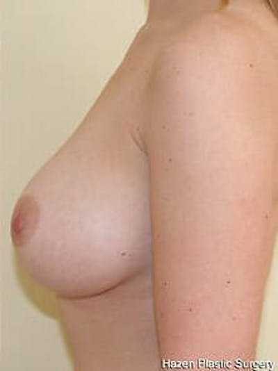 Breast Augmentation Gallery - Patient 9605788 - Image 6