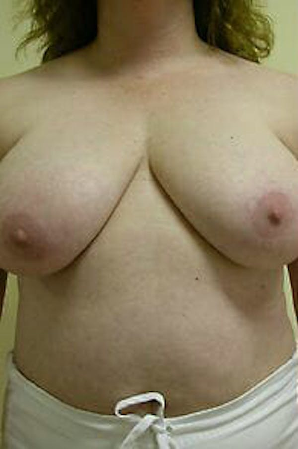 Breast Reduction Gallery - Patient 9605793 - Image 1
