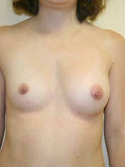 Breast Augmentation Gallery - Patient 9605791 - Image 1