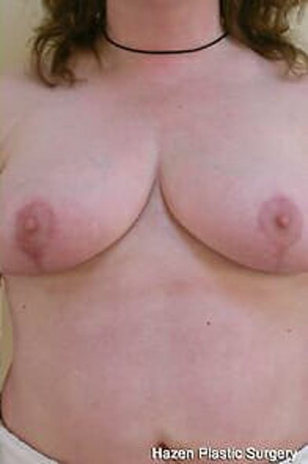 Breast Reduction Gallery - Patient 9605793 - Image 2