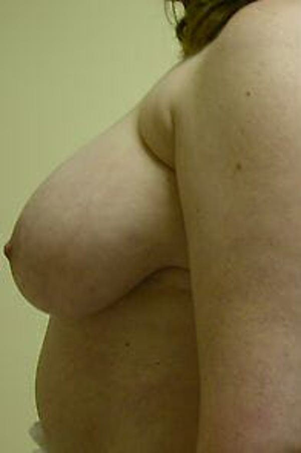 Breast Reduction Gallery - Patient 9605793 - Image 5