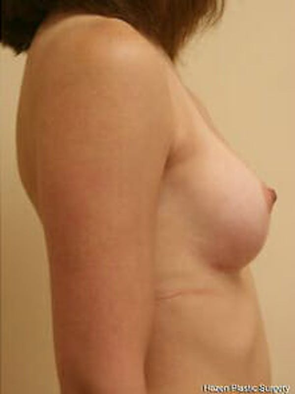 Breast Augmentation Gallery - Patient 9605791 - Image 6