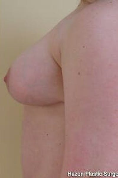Breast Reduction Gallery - Patient 9605793 - Image 6
