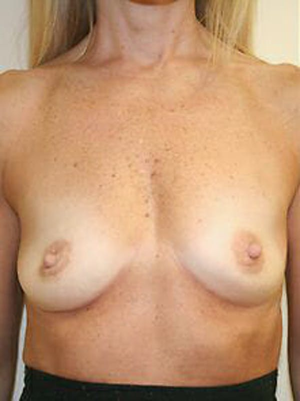 Breast Augmentation Gallery - Patient 9605801 - Image 1