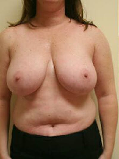 Breast Reduction Gallery - Patient 9605803 - Image 1