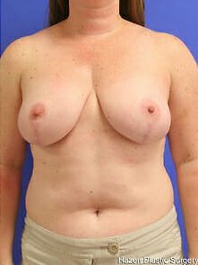Breast Reduction Gallery - Patient 9605803 - Image 2