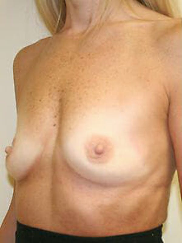 Breast Augmentation Gallery - Patient 9605801 - Image 3