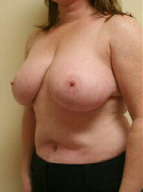 Breast Reduction Gallery - Patient 9605803 - Image 3
