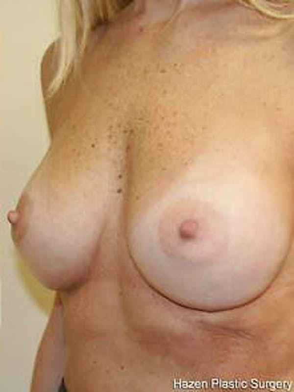 Breast Augmentation Gallery - Patient 9605801 - Image 4