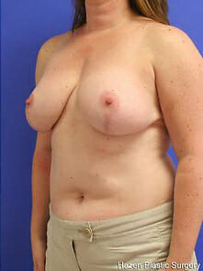 Breast Reduction Gallery - Patient 9605803 - Image 4