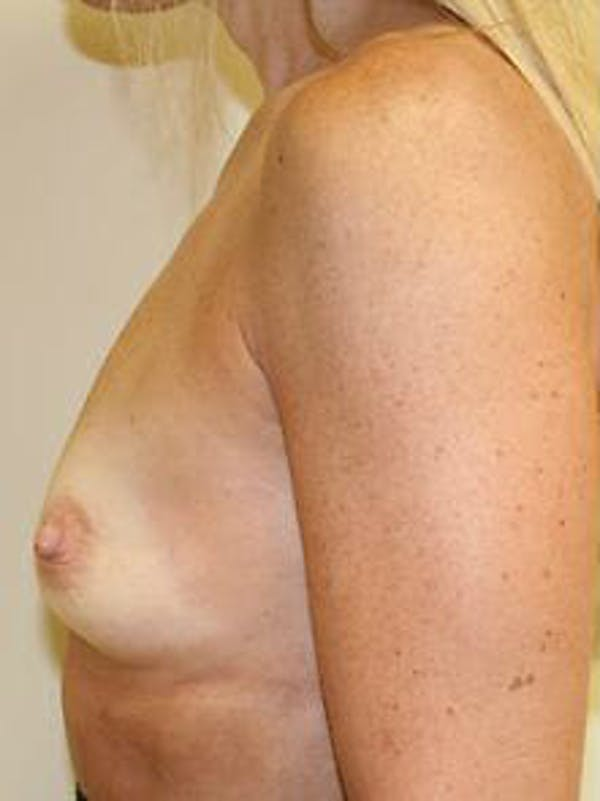 Breast Augmentation Gallery - Patient 9605801 - Image 5