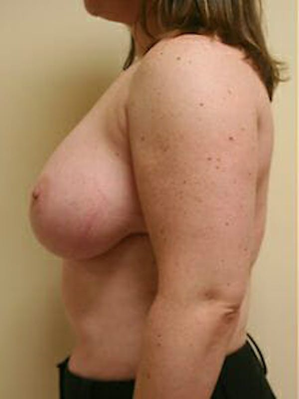 Breast Reduction Gallery - Patient 9605803 - Image 5
