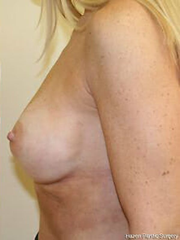 Breast Augmentation Gallery - Patient 9605801 - Image 6