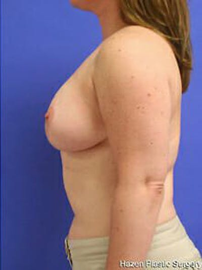 Breast Reduction Gallery - Patient 9605803 - Image 6
