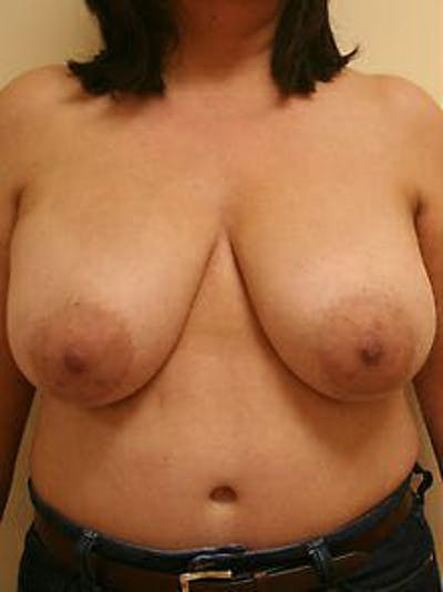 Breast Reduction Gallery - Patient 9605805 - Image 1