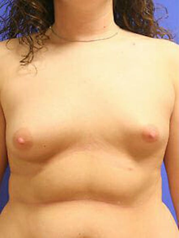 Breast Augmentation Gallery - Patient 9605806 - Image 1