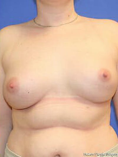 Breast Augmentation Gallery - Patient 9605806 - Image 2