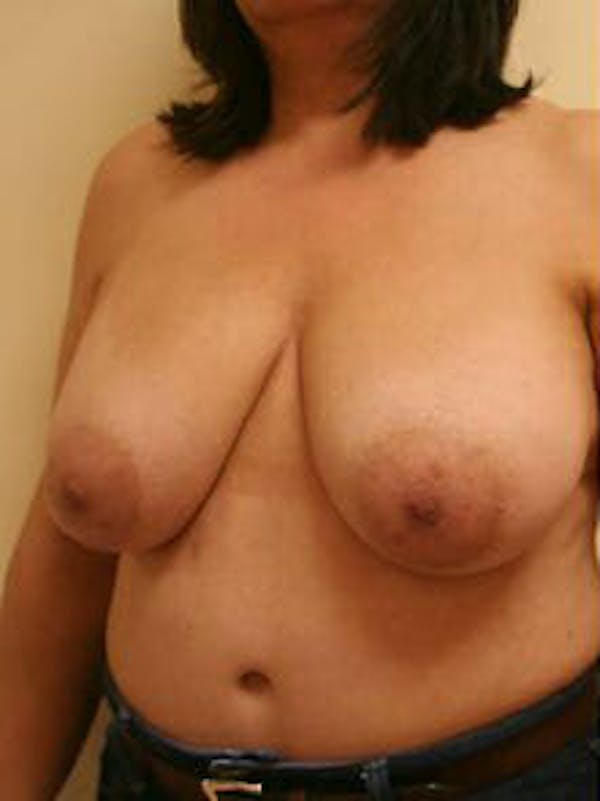 Breast Reduction Gallery - Patient 9605805 - Image 3