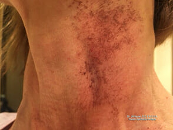 Sciton BBL Gallery - Patient 9605804 - Image 3