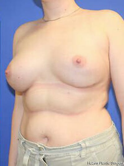 Breast Augmentation Gallery - Patient 9605806 - Image 4