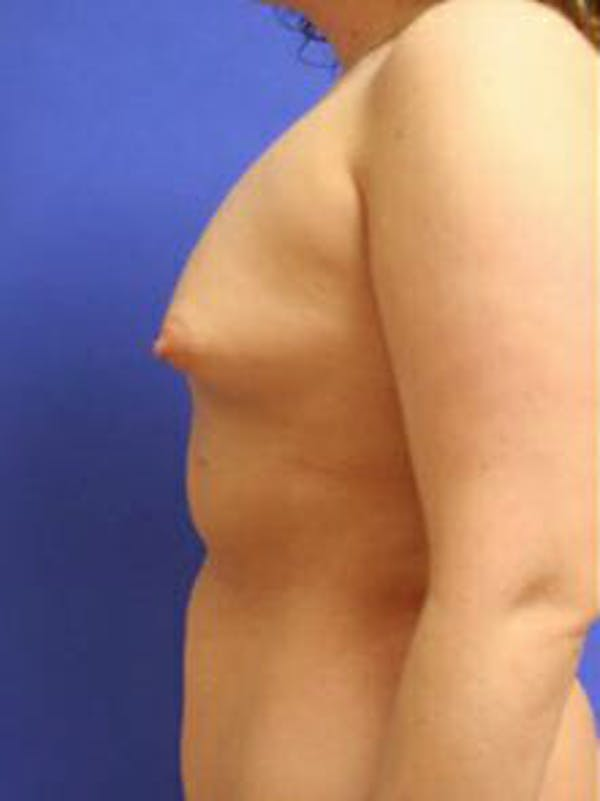 Breast Augmentation Gallery - Patient 9605806 - Image 5