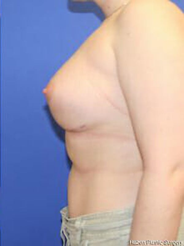 Breast Augmentation Gallery - Patient 9605806 - Image 6