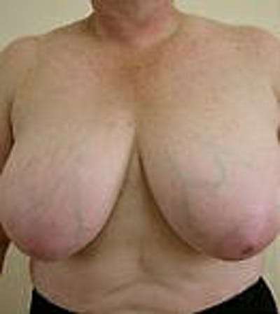 Breast Reduction Gallery - Patient 9605808 - Image 1