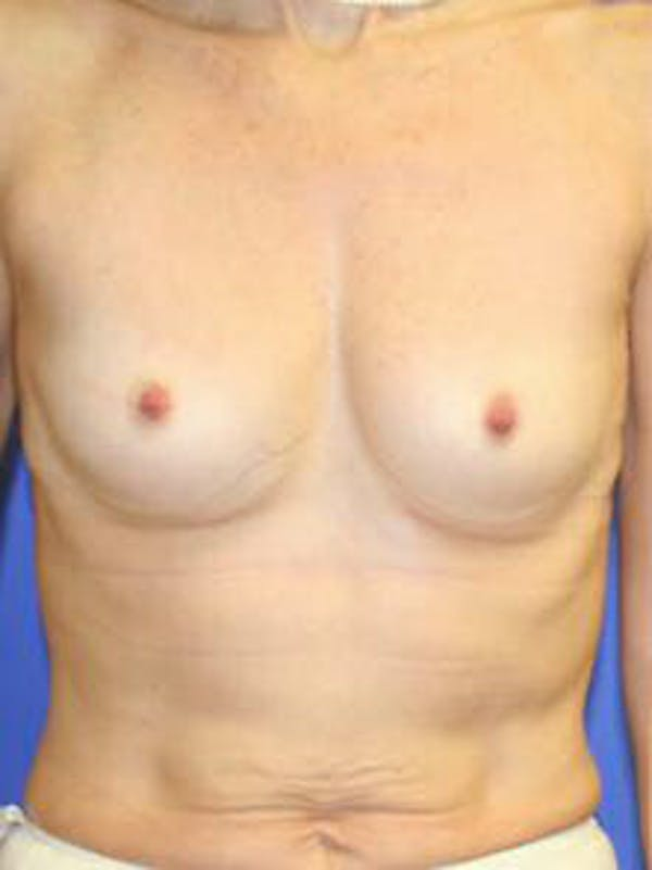Breast Augmentation Gallery - Patient 9605811 - Image 1