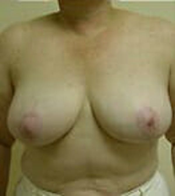 Breast Reduction Gallery - Patient 9605808 - Image 2