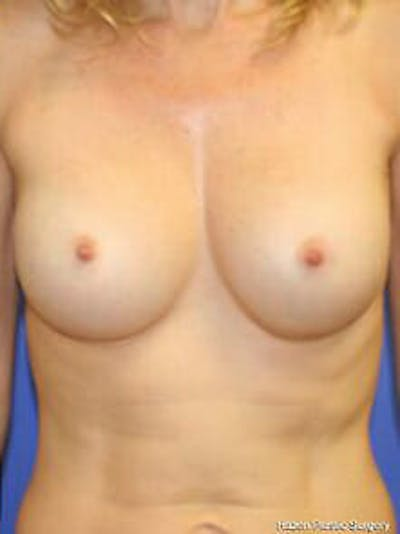 Breast Augmentation Gallery - Patient 9605811 - Image 2