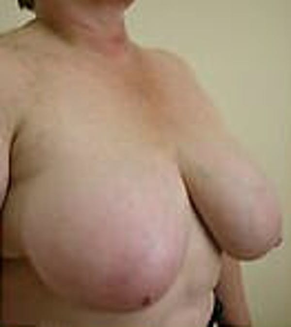 Breast Reduction Gallery - Patient 9605808 - Image 3