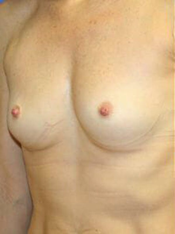 Breast Augmentation Gallery - Patient 9605811 - Image 3