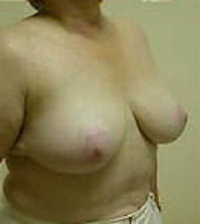 Breast Reduction Gallery - Patient 9605808 - Image 4