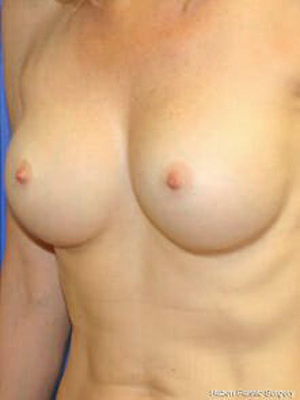 Breast Augmentation Gallery - Patient 9605811 - Image 4