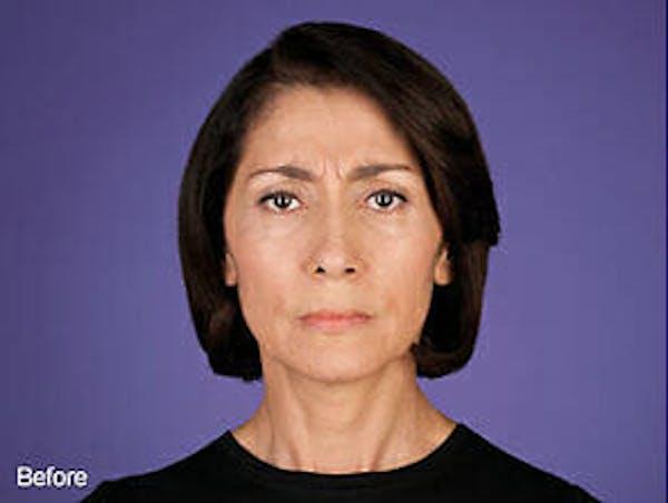 Botox Gallery - Patient 9605809 - Image 1