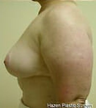 Breast Reduction Gallery - Patient 9605808 - Image 6
