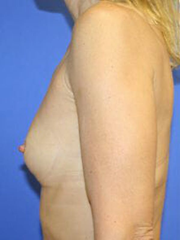 Breast Augmentation Gallery - Patient 9605811 - Image 5