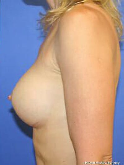 Breast Augmentation Gallery - Patient 9605811 - Image 6