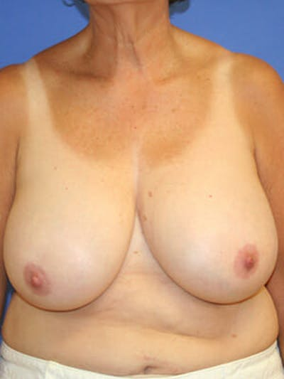 Breast Reduction Gallery - Patient 9605813 - Image 1