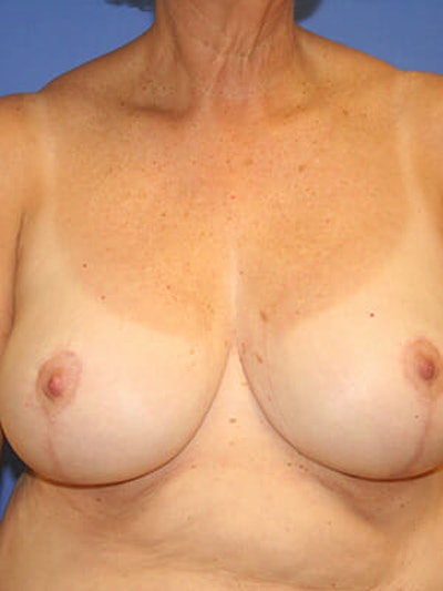 Breast Reduction Gallery - Patient 9605813 - Image 2