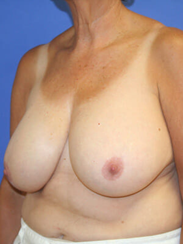 Breast Reduction Gallery - Patient 9605813 - Image 3