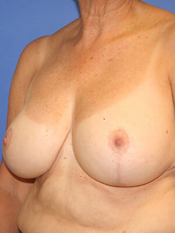 Breast Reduction Gallery - Patient 9605813 - Image 4